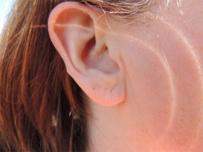 """<p class=""""Normal""""> Tạp chí <em>American Journal of Medicine</em> cho biết nếu dái tai của một ngườicó nếp nhăn tuyến tính, nguy cơ bệnh tim sẽ cao hơn. Nếu một thùy tai có nếp nhăn, sẽ tăng nguy cơ bệnh tim 33%. Nếu cảhai thùy tai đều có nếp nhăn, nguy cơ sẽ tăng 77%. Mặc dù nguyên nhân cụ thể chưa được làmrõ, nhưng các chuyên gia tin rằng những nếp nhăn dái tai có thể do thiếu các sợi đàn hồi dẫn đến xơ cứng động mạch. Những người bắt đầu thấyxuất hiệnnếp nhăn dái tai nên chú ý phòng ngừa bệnh tim, chế độ ăn uống giảm lượng cholesterol, chú ý đến huyết áp hơn.</p>"""