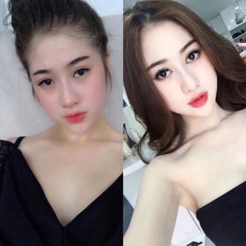 co-gai-xinh-dep-van-phau-thuat-sua-lai-toan-bo-guong-mat