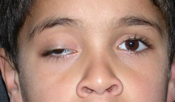 Sụp mi gây hạn chế tầm nhìn ảnh hưởng đến học tập và sinh hoạt của người bệnh. Ảnh: MC