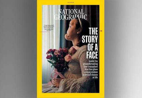 Katie lên bìa tạp chí National Geographic với gương mặt biến dạng sau sự cố. Ảnh: NG.