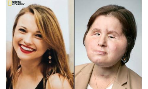 Katie trước kia (trái) và hiện tại. Ảnh: NG.