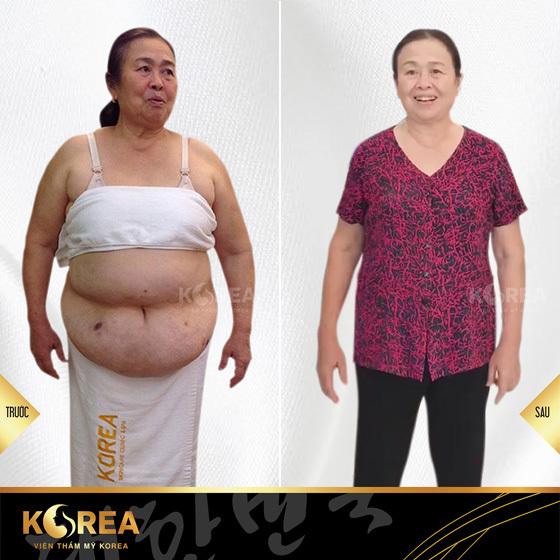Cô Hồng- Khách hàng giảm béo tại VTM Korea sau khi giảm 12kg mỡ xấu, các triệu chứng bệnh khớp và mỡ máu cũng giảm rõ rệt.