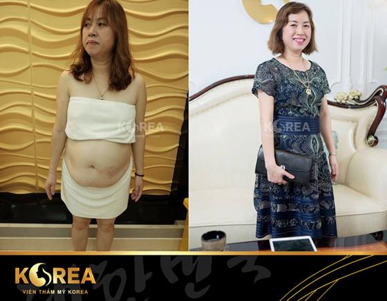 Chị Hải giảm 38cm vòng bụng, lấy lại vóc dáng thon gọn sau khi giảm béo công nghệ Max Thin Lipo.