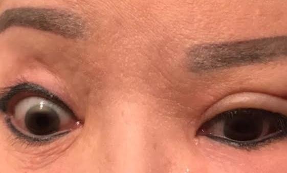 Cơ mặt bên trái của bà bị liệt, mắt không thể nhắm được. Ảnh: NVCC.