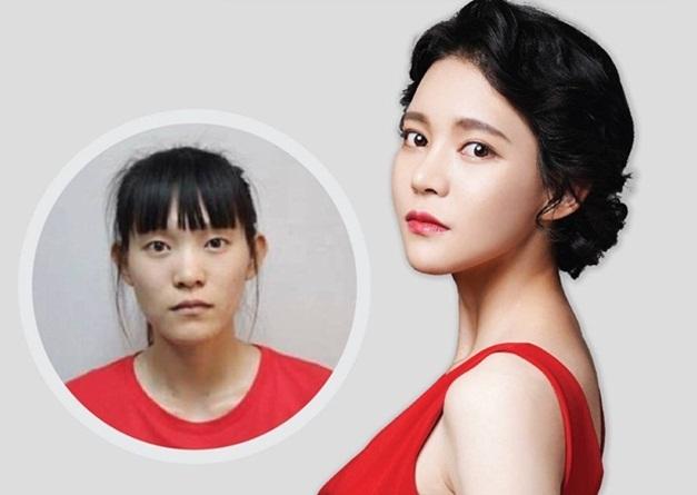 Một trong những ca phẫu thuật thành công của Tiến sĩ Jeong.