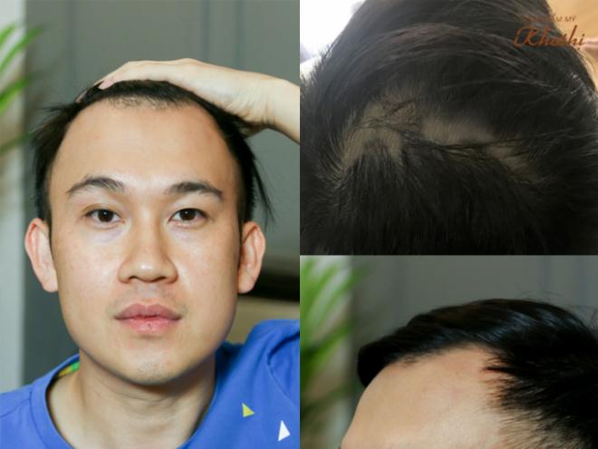 Tác hại khi chọn không đúng phương pháp cấy tóc