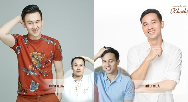 Dương Triệu Vũ, doanh nhân Sơn Đoànsau 5 tháng cấy tóc tự thân Hair Balance.