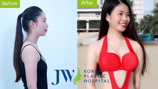 Ưu đãi nâng ngực nano tại thẩm mỹ viện JW - 3