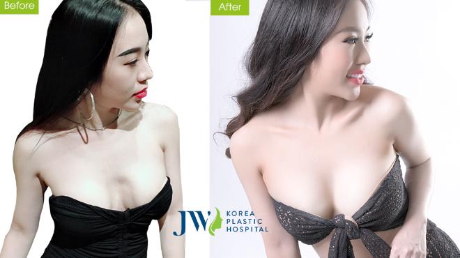 Ưu đãi nâng ngực nano tại thẩm mỹ viện JW - 1