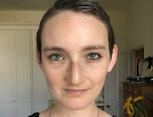 Khuôn mặt xinh đẹp củaJen Taylor sau khi phẫu thuật tái tạo.