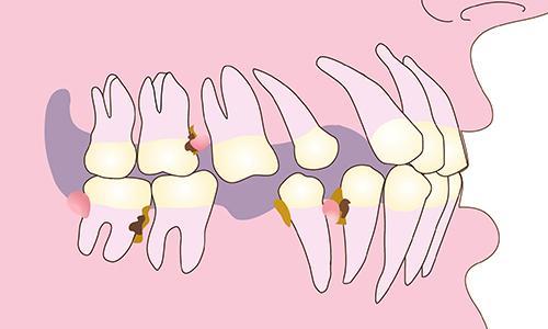 Mất răng kéo theo hàng loạt tác động xấu đến các răng còn lại.