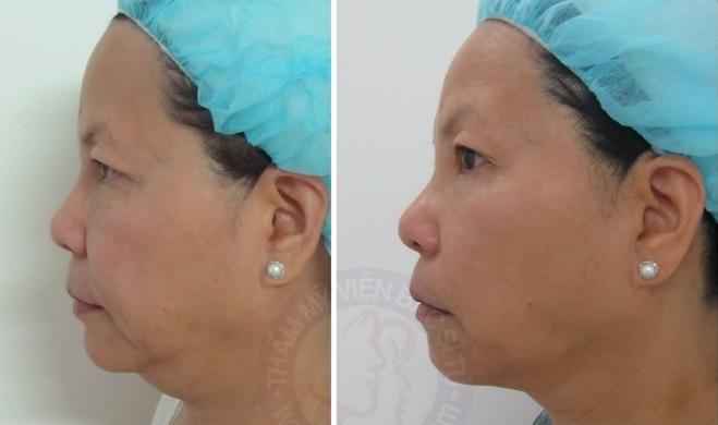 Khuôn mặt thon gọn, da mịn và sáng hơn sau trị liệu nửa mặt. Kết quả tiếp tục tăng lên trong vài tháng do lượng collagen được tiếp tục tăng sinh.