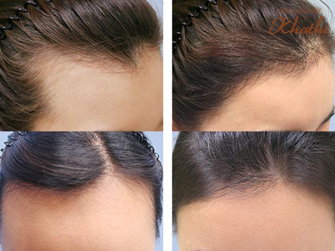 Những cách giúp phái đẹp thoát ám ảnh rụng tóc, hói đầu - 4