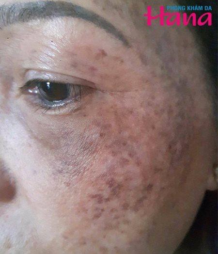 Nám da có thể do yếu tố di truyền hoặc do thay nổi nội tiết tố sau sinh, điều trị sai cách sẽgây biến chứng khó kiểm soát.