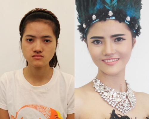 Hoàng Hiên trước và sau khi phẫu thuật thẩm mỹ