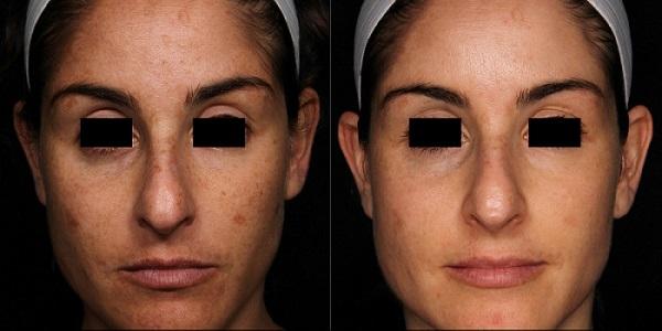 Hình ảnh trước và sau trị sắc tố.