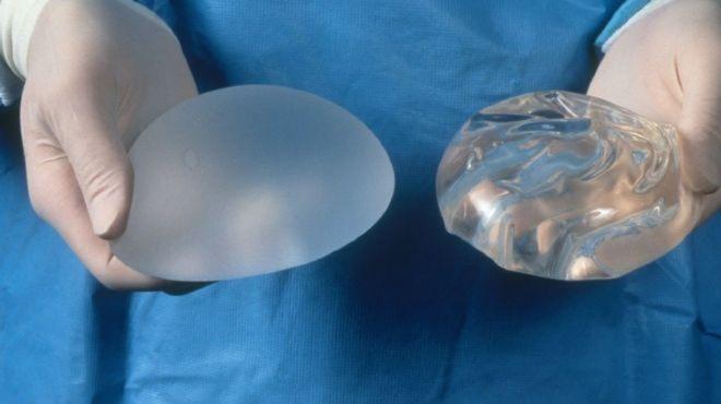 Túi ngựcnhám có độ bám dính tốt vào mô ngực và chi phí phẫu thuật cao hơn túi ngựctrơn. Ảnh: BC