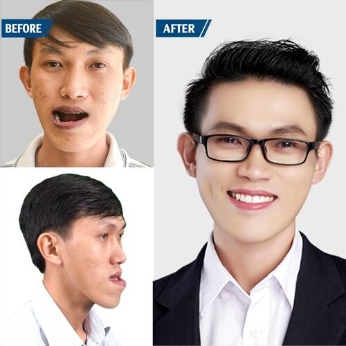 Ca phẫu thuật kéo dài 6 tiếng giúp Duy Phương thay đổi cuộc đời.