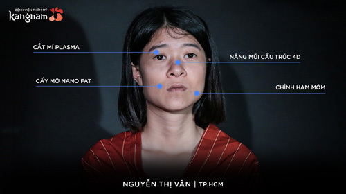 Với bộ hàm móm và khuôn mặt thiếu cân đối, Nguyễn Thị Vân luôn tự ti về ngoại hình của bản thân.