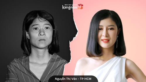 Nguyễn Thị Vân trước và sau phẫu thuật.