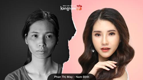Phan Thị May được nhiều người ví búp bê Barbie của Việt Nam sau phẫu thuật thẩm mỹ.