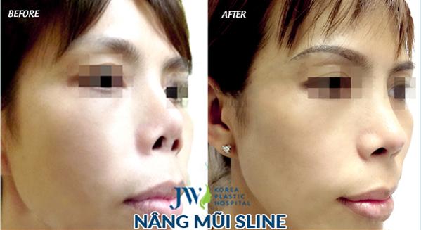 Khách hàng sở hữu chiếc mũi cao, thon nhờ ứng dụng công nghệ tái phẫu thuật mũi 4.0 tại JW.