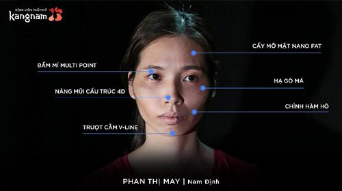 Phan Thị May tiến hành 6 phương pháp phẫu thuật.