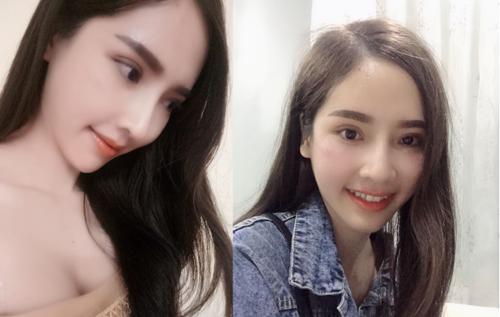 Khi Bệnh viện Thẩm mỹ Kangnam đăng tải về hình ảnh của May trước và sau phẫu thuật, cộng đồng mạng nhận xét, cô xinh không kém Thiên thần Yoshi Thái Lan.