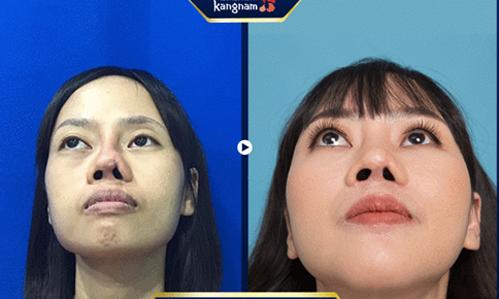 Vũ Thị Hằng có ngoại hình xinh đẹp sau phẫu thuật.