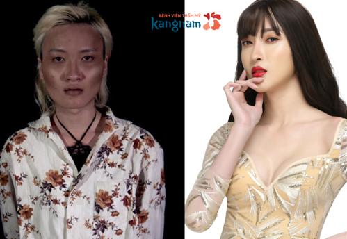 Trần Ngọc Sang - ca phẫu thuật nâng ngực cho người chuyển giới nam sang nữ thành công