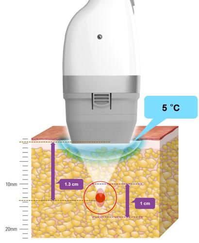 Đầu tuýp lạnh có nhiệt độ chỉ 5 độ C giúp hạn chế cảm giác rát bỏng.