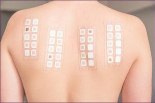 Xét nghiệm lẩy da, áp da, huyết thanh tự thân, thử thách thuốc giúp người bệnh tìm ra nguyên nhân gây dị ứng.
