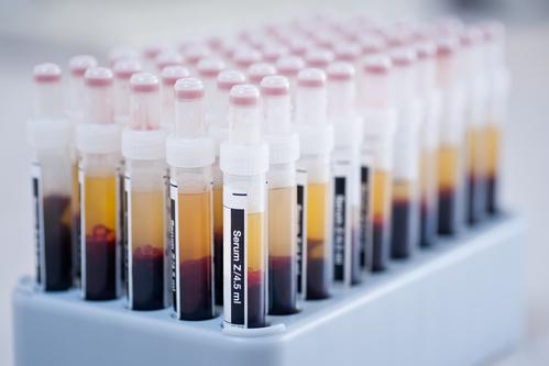 Xét nghiệm bằng cách đưa thuốc với liều kiểm soát (từ thấp đến cao) vào cơ thể bệnh nhân