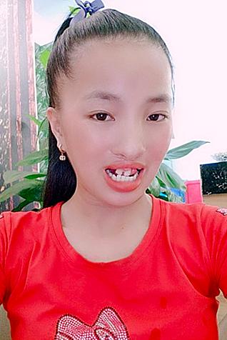Hình ảnh bỏng toàn thân của thí sinh Võ Thị Tý (trái). Nhật Linh (phải) cũng mong muốn có cơ hội thẩm mỹ miễn phí để có cuộc sống tốt đẹp hơn.