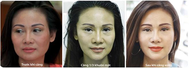 Hình ảnh khách hàng Thanh Hiền trước và sau khi căng da mặt bằng chỉ không tiêu Mỹ.