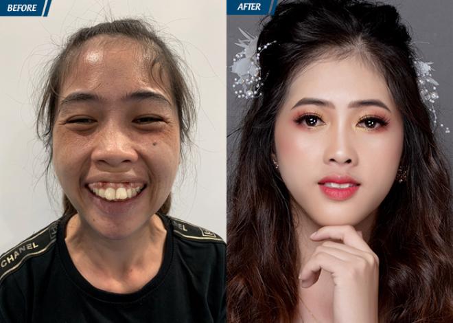 Cô gái Bình Thuận tự tin sống sau ca phẫu thuật hàm hô - 1