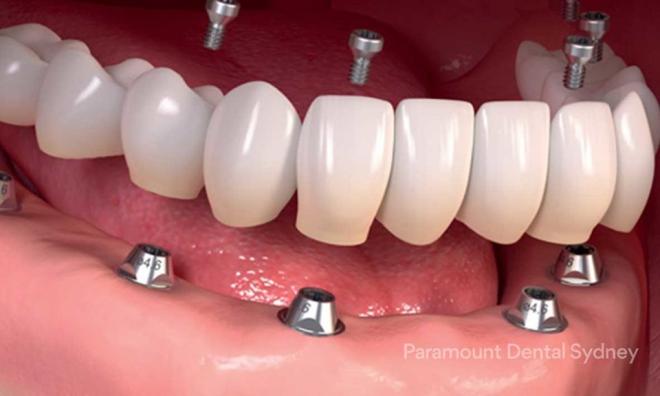Giải pháp cho người bị mất răng toàn hàm - 1