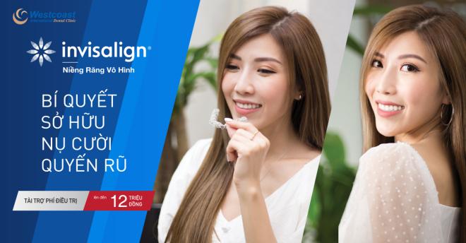 10 điều chuyên gia khuyến cáo khi niềng răng, chỉnh nha - 4