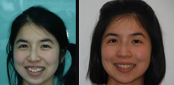 Khách hàng rước và sau khi chữa răng khấp khểnh tại Nha khoa Quốc tế Phú Hòa.