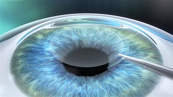ReLEx Smile là một trong những công nghệ phẫu thuật tật khúc xạ hiện đại nhất hiện nay.
