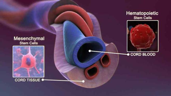 Tế bào tự thân Multiᐩ có nguồn gốc từ tế bào cuống rốn.