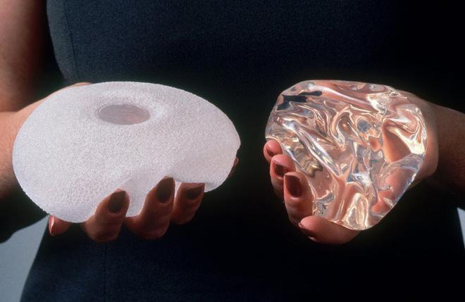 ALCL xuất hiện ở cả phụ nữ nâng ngực túi trơn, túi nhám và nhiều loại khác.