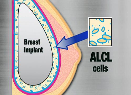 Theo FDA, ALCL không phải là ung thư vú và tỷ lệ mắc chứng ALCL ở phụ nữ nâng ngực là rất hiếm.