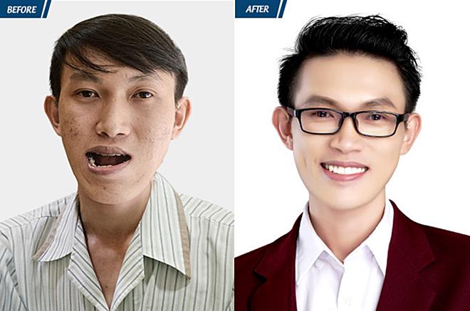 Nguyễn Duy Phươnghơn 20 năm không thể khép miệng vì khuôn hàm móm và lệch nặng. Anh được bác sĩ Tú Dung hỗ trợ toàn bộ kinh phí phẫu thuât.