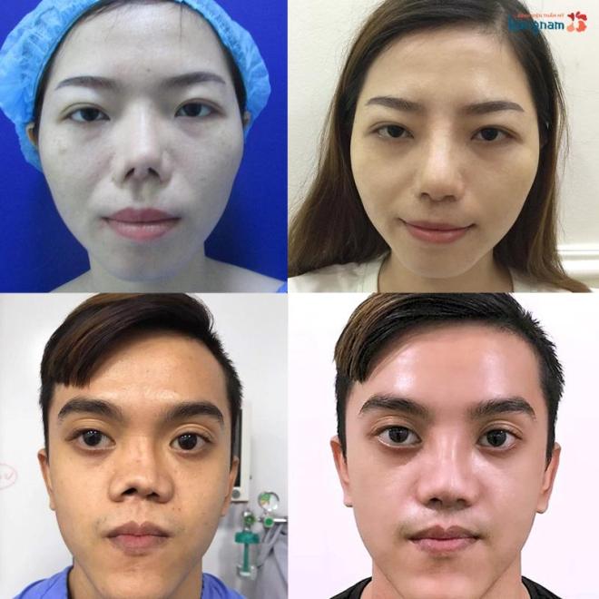 Hỏi đáp: Trường hợp nào chỉ định nâng mũi sụn sườn (xin edit) - 1