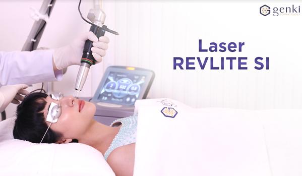 Laser Revlite SI là công nghệ trị nám từ Mỹ.