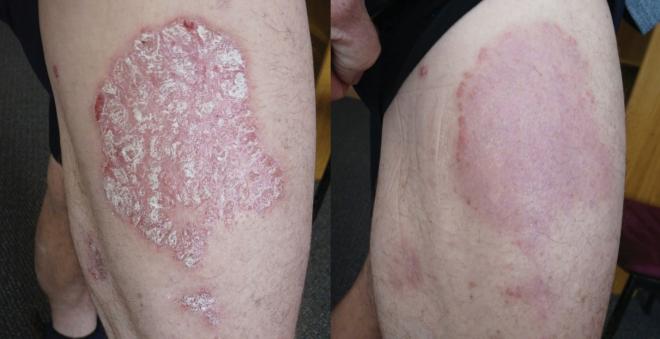 Hình ảnh trước và sau 8 tuần sử dụng sản phẩm thảo dược Dr Michaels Soratinex cho bệnh vảy nến..