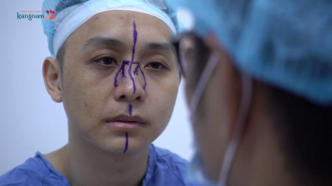 Đinh Nho Liêm trước khi phẫu thuật thẩm mỹ mũi.