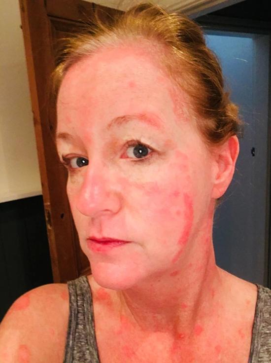 Tình trạng da của Paula Taylor trước khi ăn chay. Ảnh: Caters News Agency