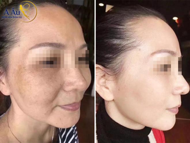Hiệu quả làm đẹp da, trị nám và sẹo rỗ tại Á Âu với bộ đôi tế bào tự thân và laser Mỹ.